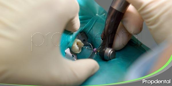 endodoncia en los molares