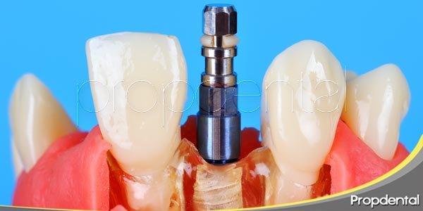 fases de la colocación del implante