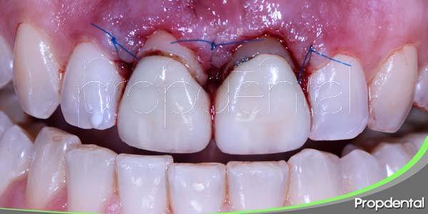 indicaciones generales para la cirugía periodontal