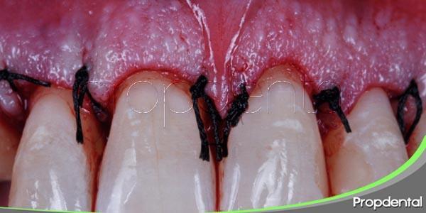 introducción al tratamiento quirúrgico periodontal
