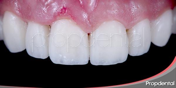para que sirven las carillas dentales