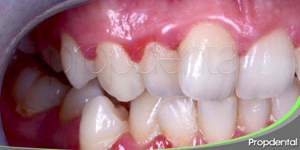 principales factores de riesgo de la gingivitis