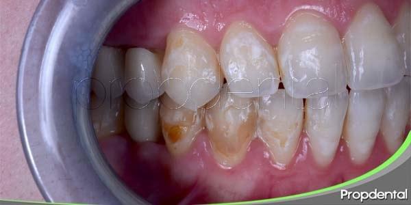 problemas dentarios: bacterias en los dientes