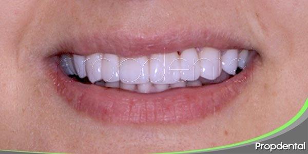 prótesis de circonio de los dientes anteriores para mejorar la estética de la sonrisa