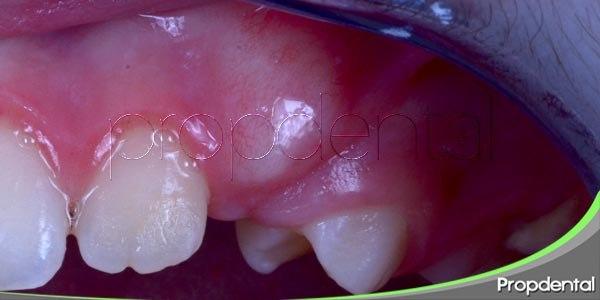 sintomas del absceso dental
