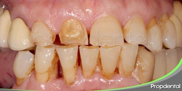 síntomas dentales de alerta