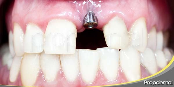 todo acerca de los implantes dentales