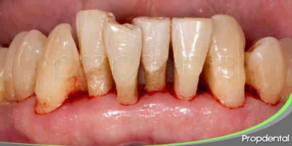 tratamiento para la enfermedad periodontal