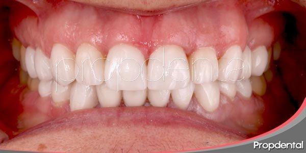 una introducción a la odontología estética