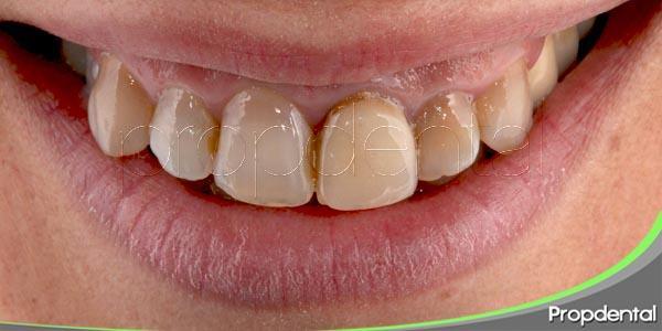 variedades de manchas dentales