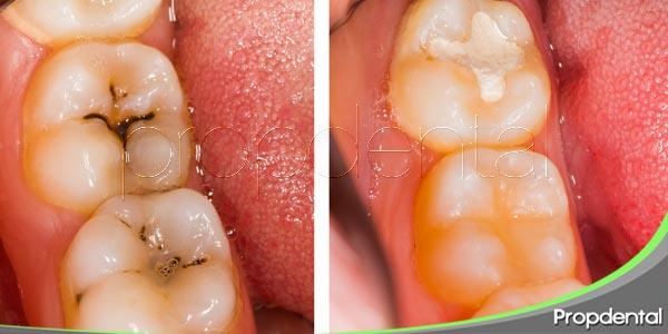 ventajas del empaste sobre la endodoncia