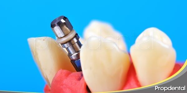 5 razones para decidirse por un implante