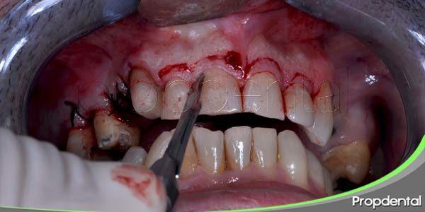 cirugías dentales comunes