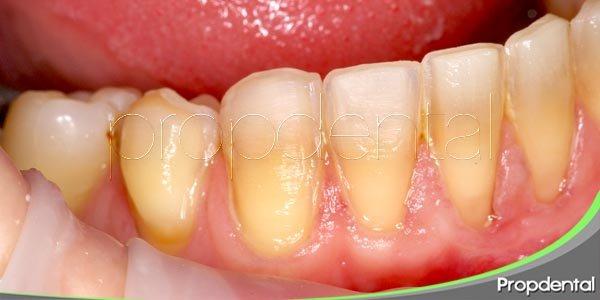 coloración anormal de los dientes