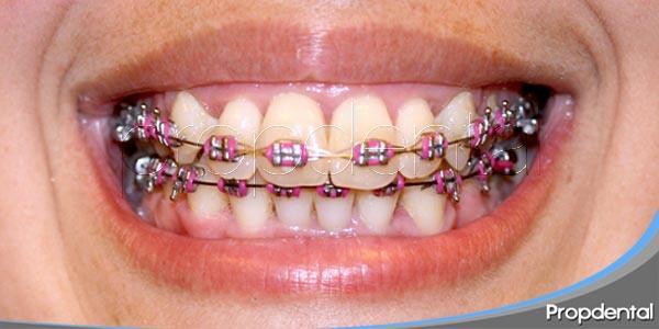 como acelerar la ortodoncia
