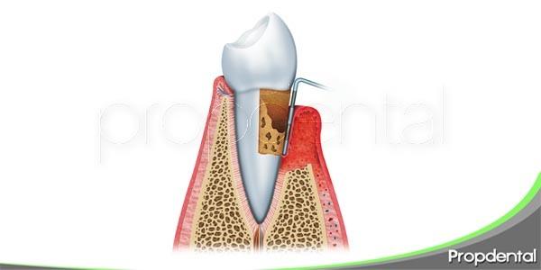 como afecta la gingivitis