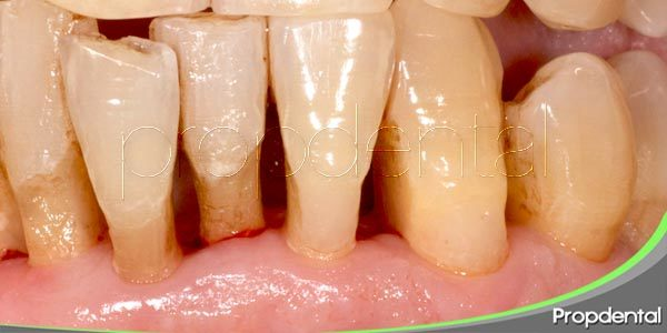 como se manifiesta la enfermedad periodontal