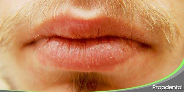 ¿cómo tratar el síndrome de la boca seca?