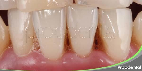 conceptos básicos de la enfermedad periodontal