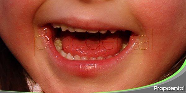 cuidados dentales en niños con necesidades especiales