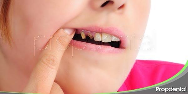 el peligro de olvidar el cepillado dental antes de acostarse