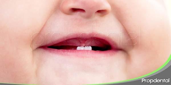 factores de retraso en la erupción dental