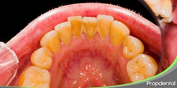 ¿falta de saliva? vigila la placa dental
