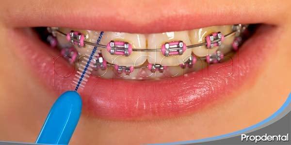 higiene bucodental durante la ortodoncia
