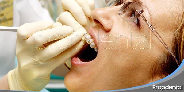 limitaciones en la ortodoncia para adultos