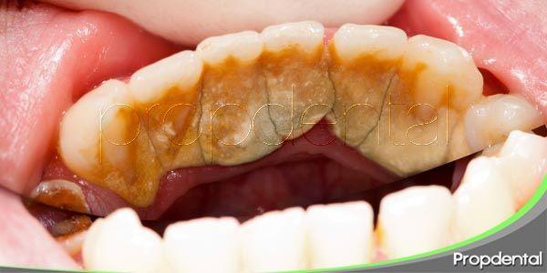 los factores de riesgo de la gingivitis