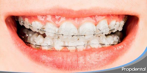 ortodoncia exprés