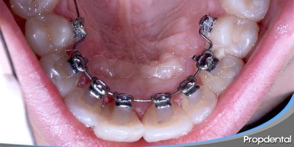 ortodoncia lingual o invisalign