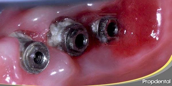periimplantitis: factores coadyuvantes y diagnóstico