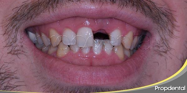 ¿qué considerar antes de los implantes dentales?