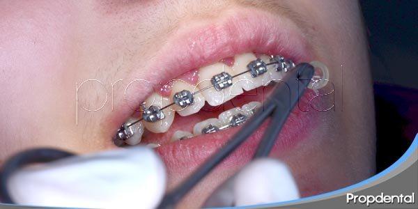 qué corrige la ortodoncia