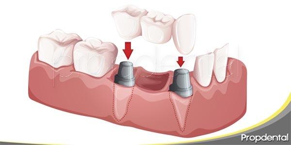 soportes para los puentes dentales
