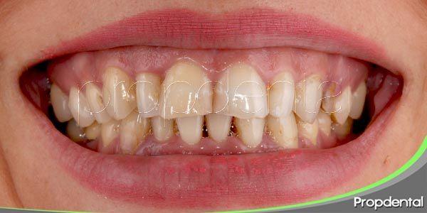 tipos de decoloraciones y tratamientos