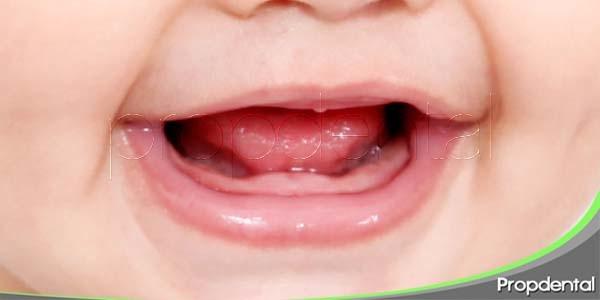 trastornos de la erupción dental