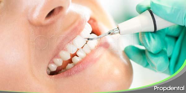 tratamiento preventivo de la gingivitis