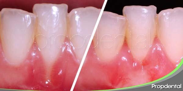 tratamientos de restauración dental