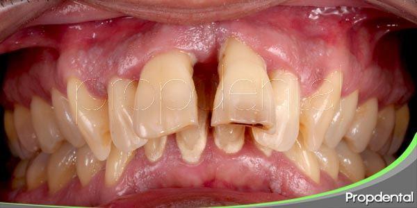 tratamientos para la enfermedad periodontal
