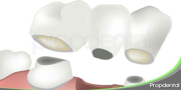usos de los puentes dentales