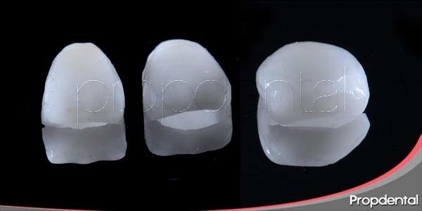 utilidad de las carillas dentales