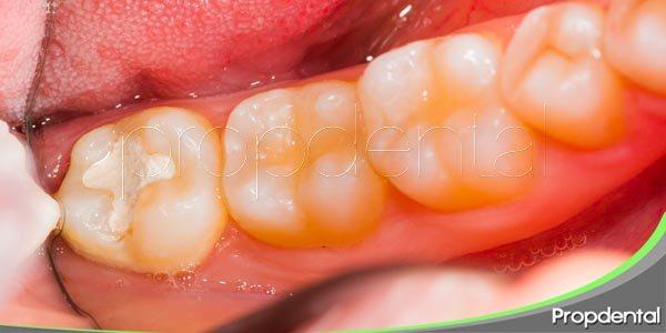 variedades de empastes dentales