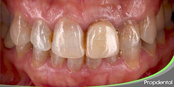 variedades de las manchas dentales