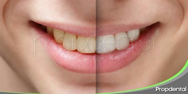 ¿blanqueamiento dental en casa o en la clínica dental?