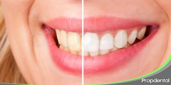 blanqueamiento dental: la sonrisa más valiosa