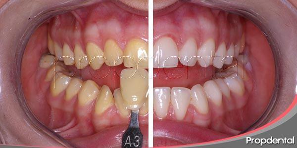 blanqueamiento dental no vital