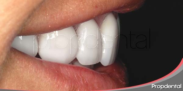 carillas dentales: composite, porcelana y lumineers