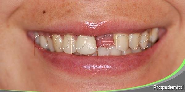 causas de la pérdida de piezas dentales